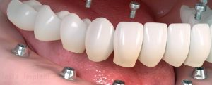 Full-Arch Dental Implants